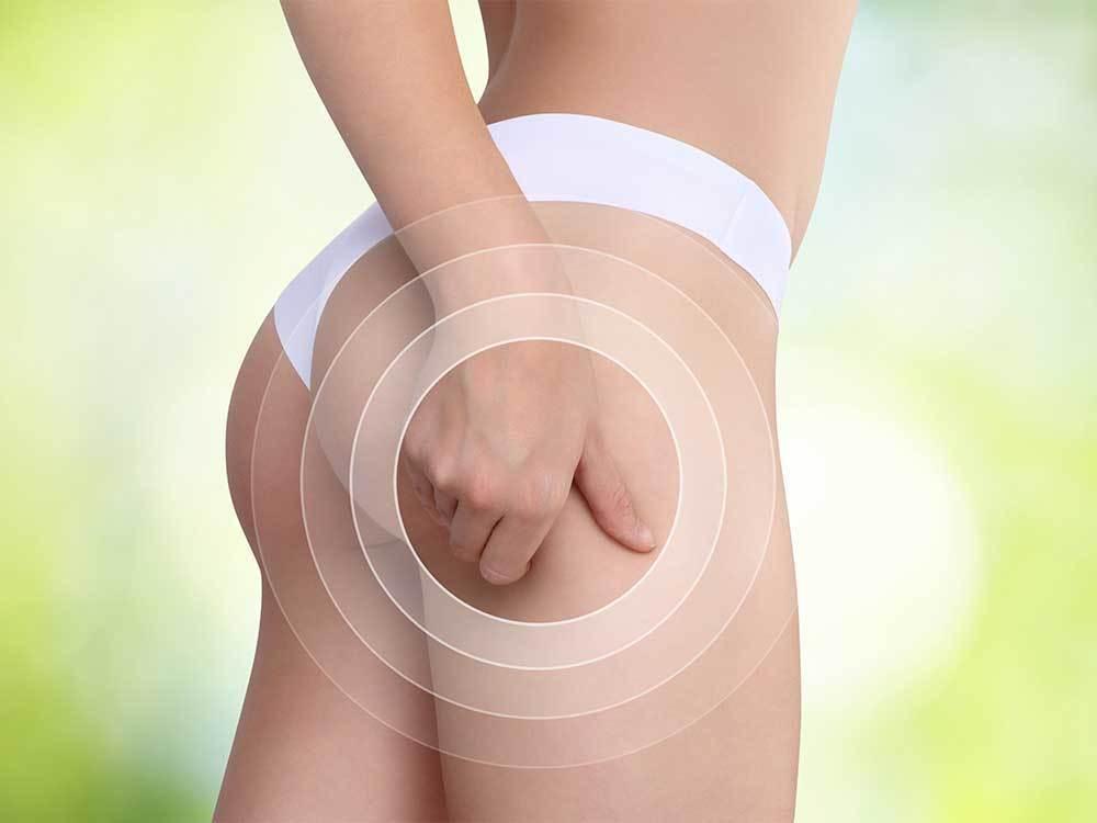 Cellulite Oberschenkel