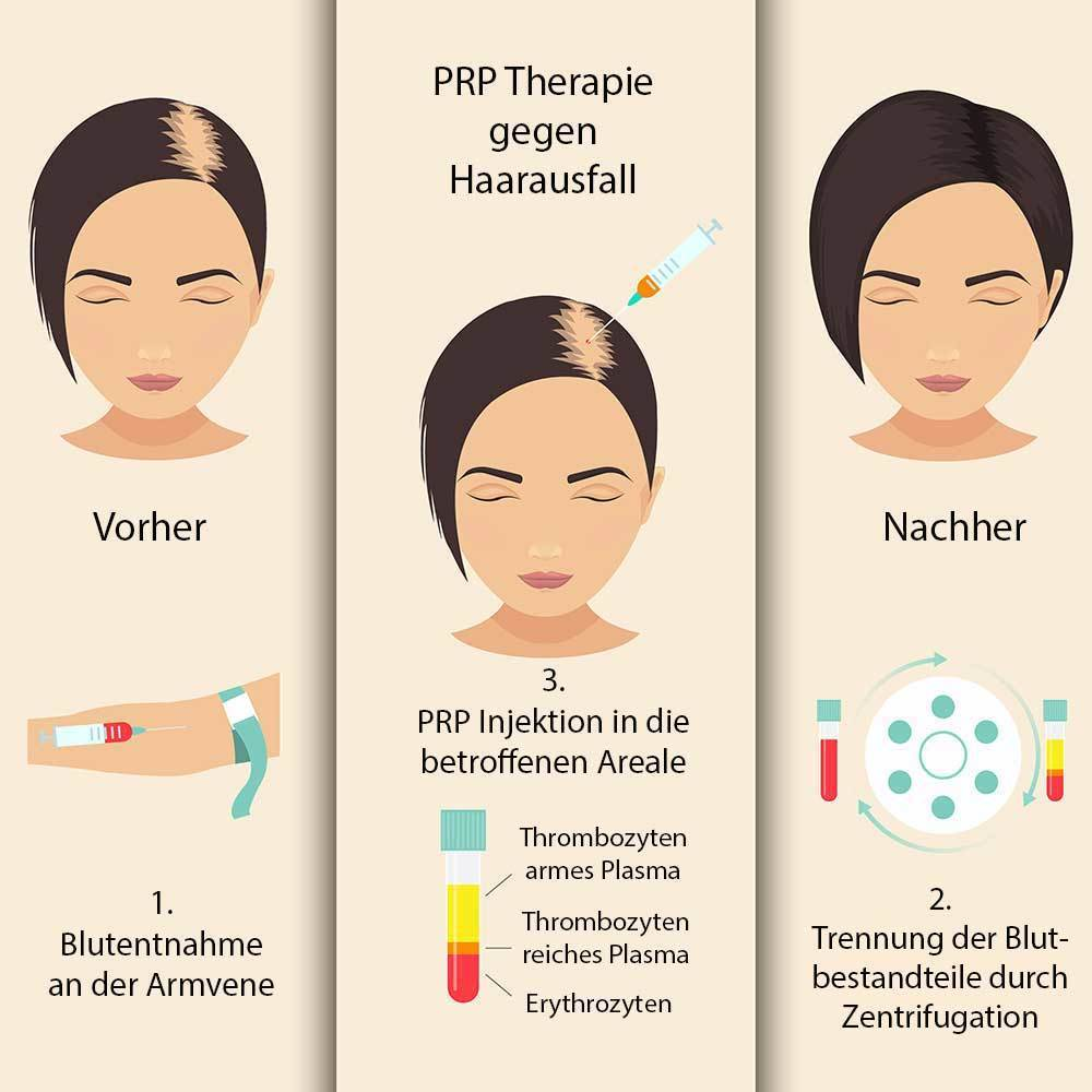 PRP Therapie Haarausfall