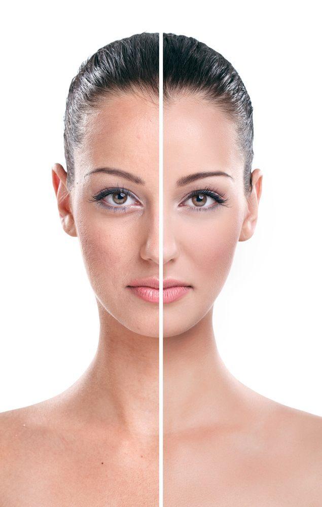 Ergebnis einer Anti Aging Behandlung